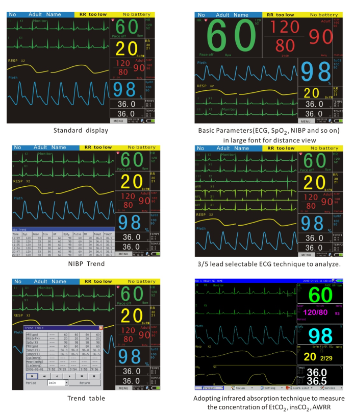 High Quality 12.1 Inch Multi-parameter Patient Monitor