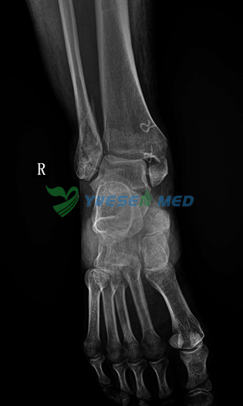 foot x ray picture of UC-arm radiography