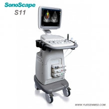 Sonoscape S11 Chariot Doppler Couleur Machine à Ultrasons